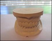 A sample dental cast