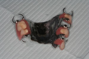 An example of a partial denture